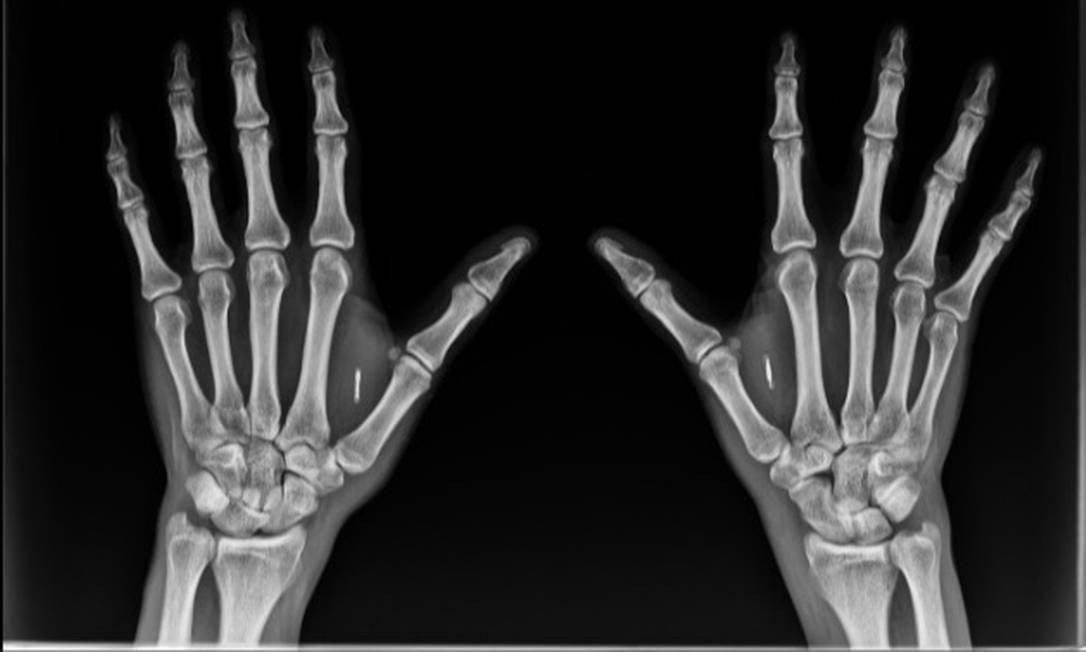 Pesquisador diz que implante de chip no corpo poderá ajudar no combate ao coronavírus