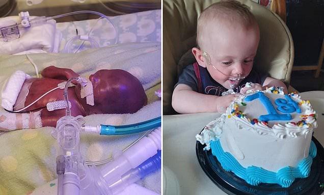"""Reconhecido como """"milagre"""", bebê mais prematuro do mundo completa 1 ano de idade"""