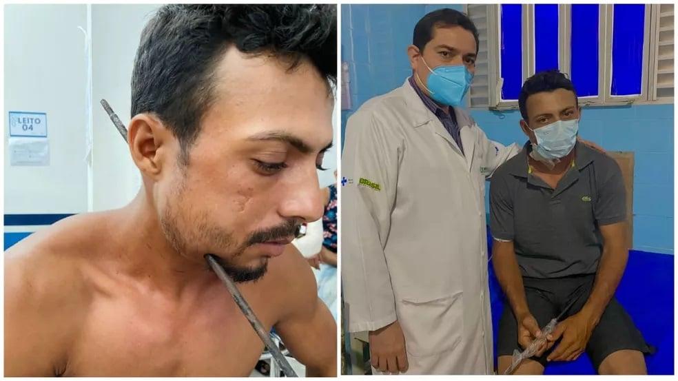 'Eu sou um milagre', diz paciente após ferro atravessar a lateral do seu pescoço